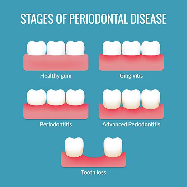 Chart Showing Gum Disease Progression